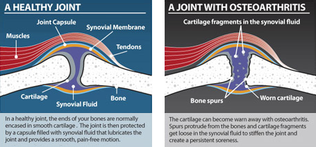 A healthy joint and a joint with osteoarthritis